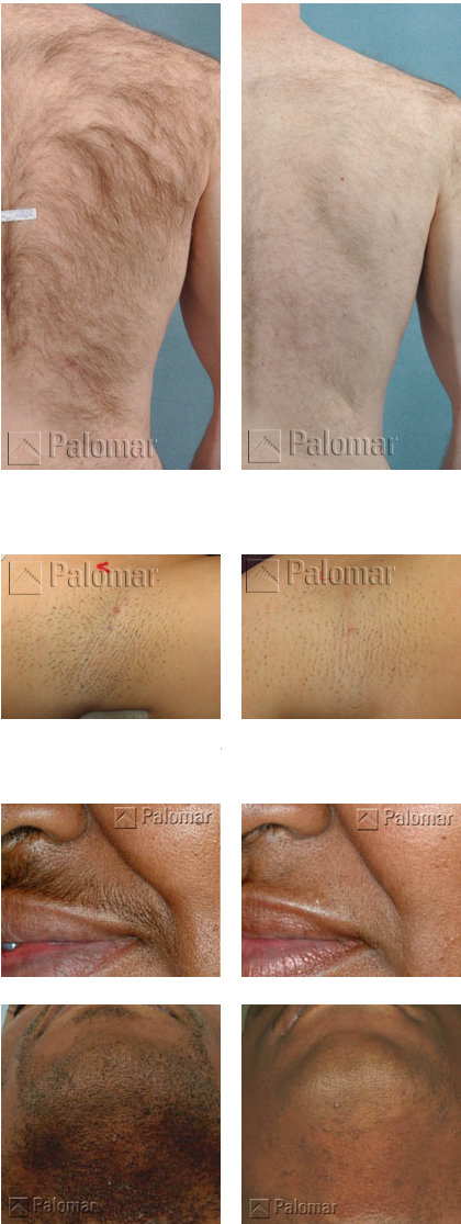 Coast-clinic-cosmetics-ipl-before-&-after